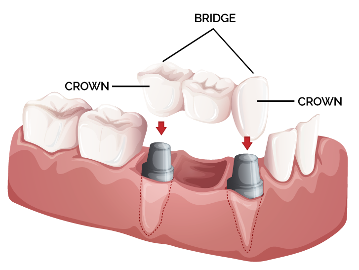 crowns and bridges mg dental