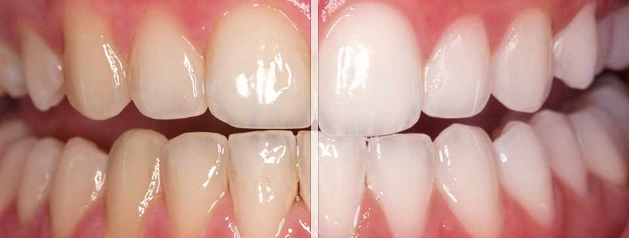 teeth whitenning mg dental example