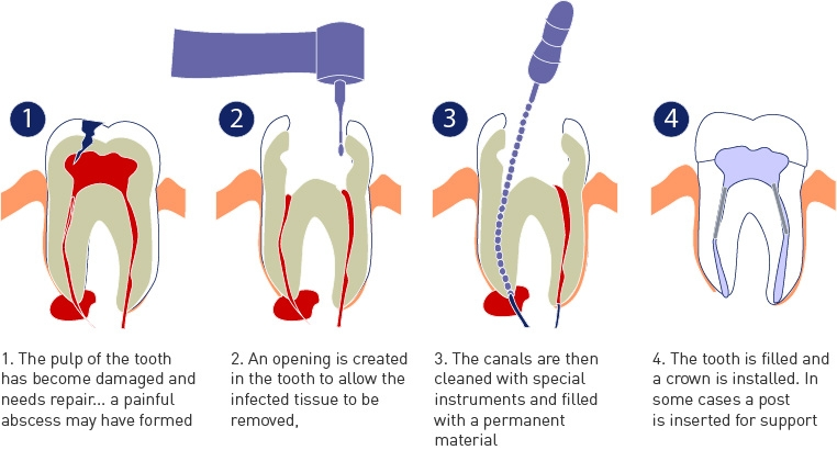 root canal therapy mg dental