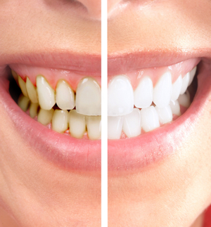 smile makeover side by side mg dental